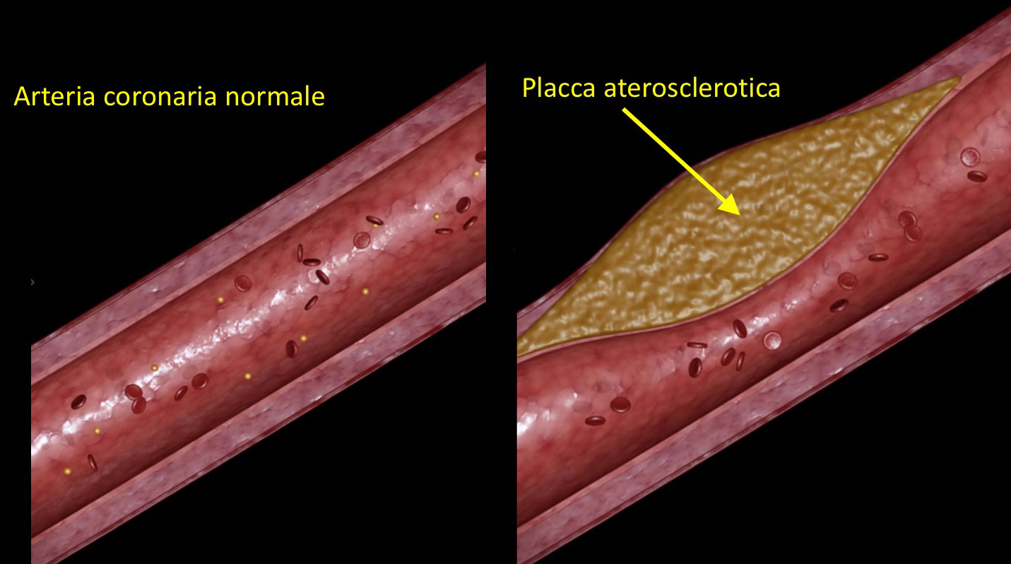 Malattia coronarica e infarto miocardico fondazione for Vasi coronarici